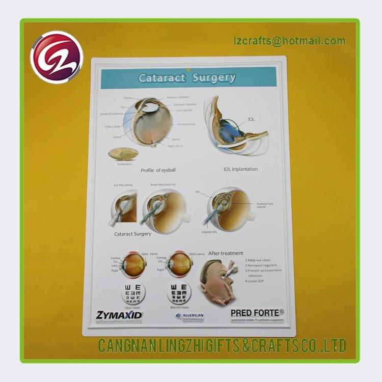 3d Auge Anatomischen Grafik/medizinische 3d Poster - Buy Product on ...