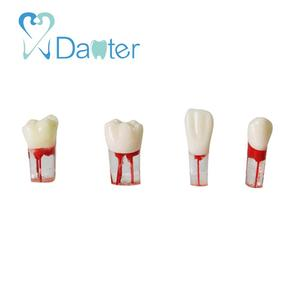 Dental Endo Root Canal Teeth Model Use for Endodotics Practice