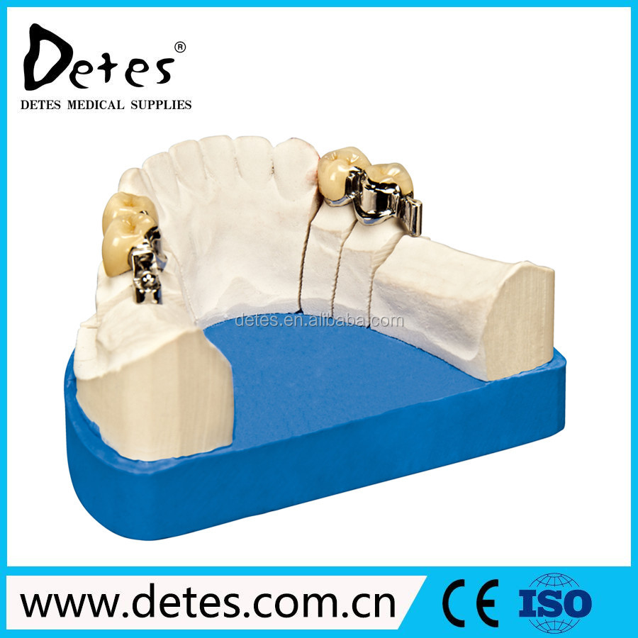 Precision(Snap) Attachment by Detes false teeth factory