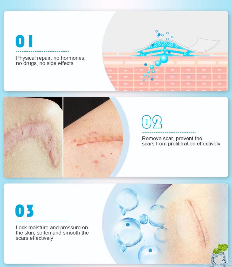 silicone scar