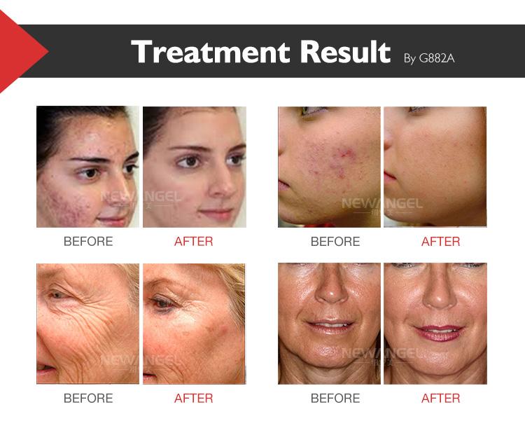 Skin rejuvenation facial whitening oxygen therapy jet peel machine