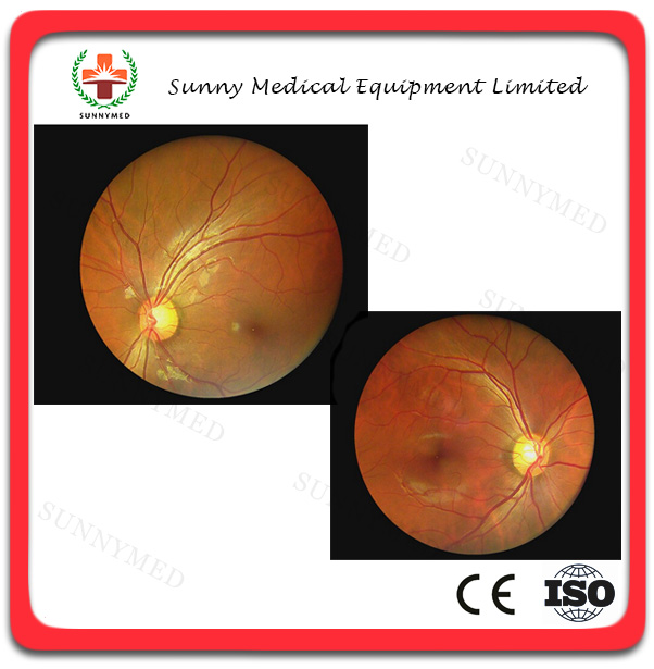Sy-v042 Hand-held Ophthalmic Instrument Digital Portable Fundus ...