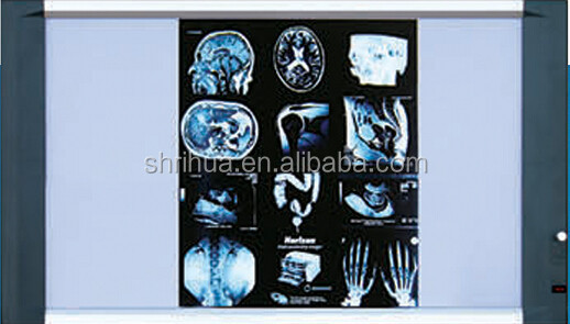 Factory since 1998 with OEM service!ISO and CE approved led x ray medical view box