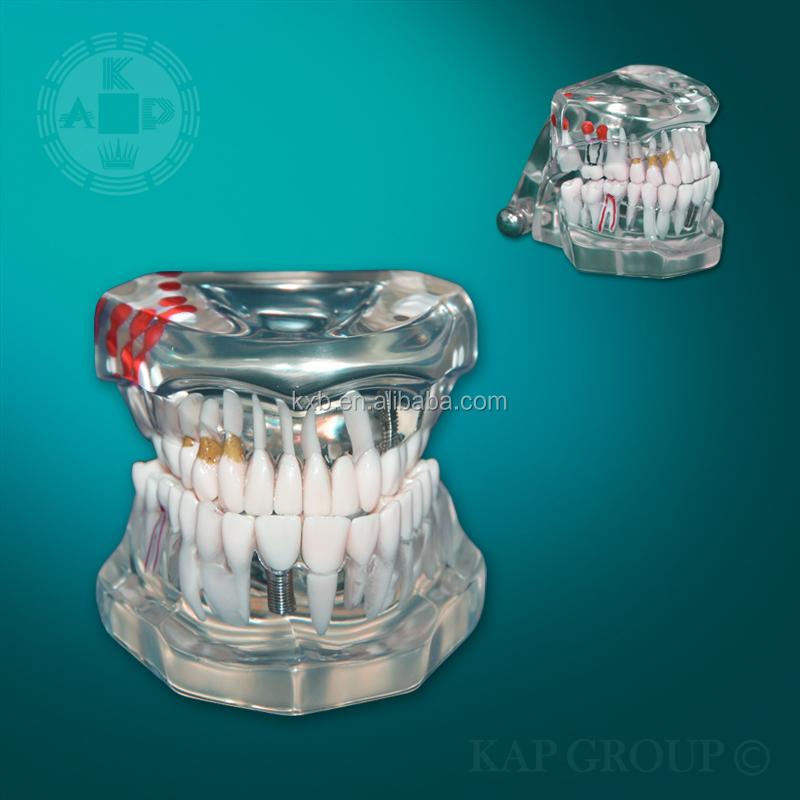 Human Body Physiology Dental Teaching Anatomy Model Plastic Teeth