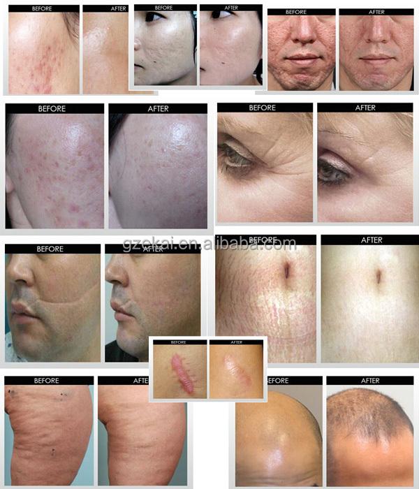 derma rolling skin care