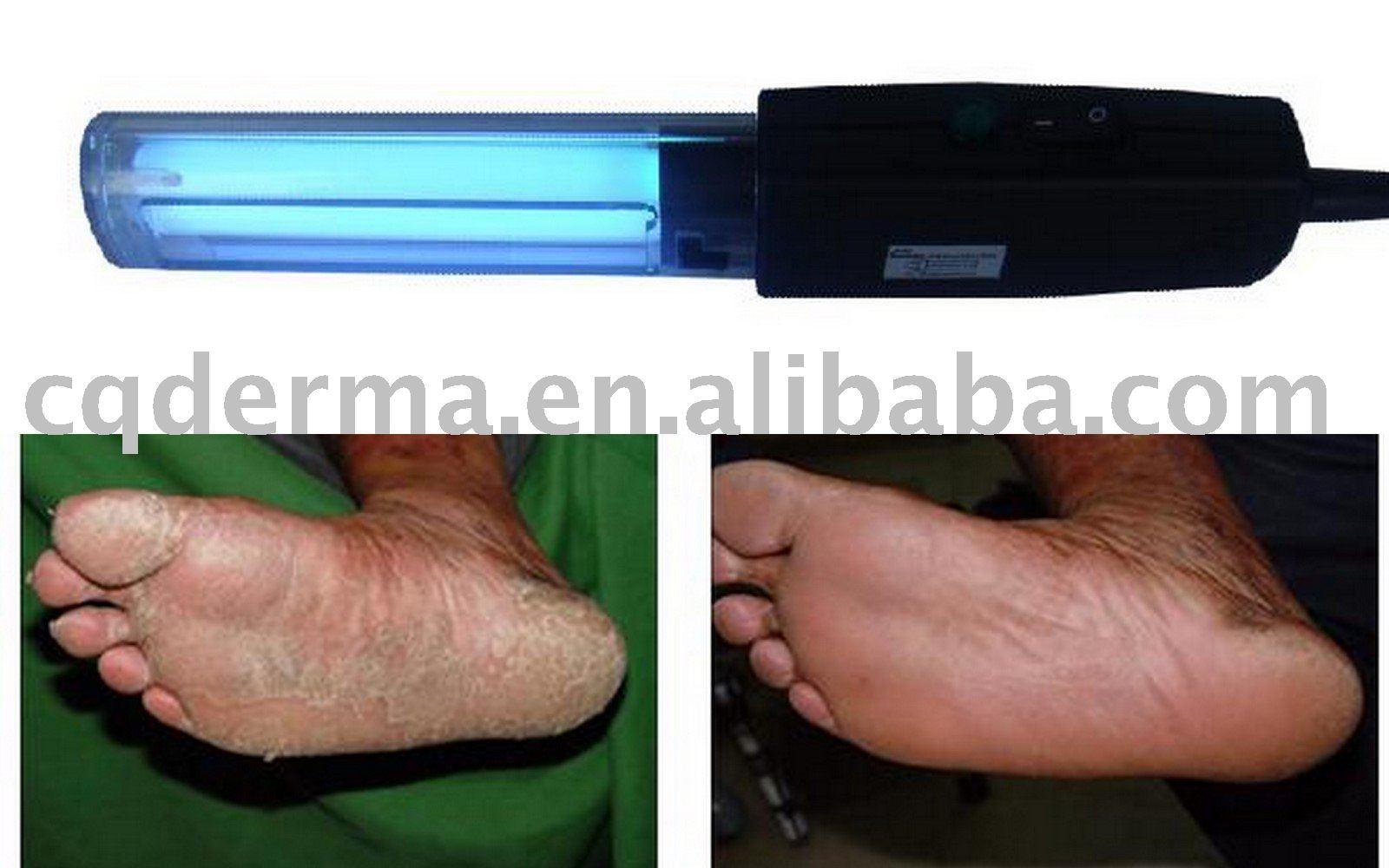 uvb lampa psoriasis