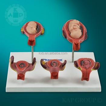 Sistema Reproductor Femenino Modelo Anatómico,Plástico Genital ...