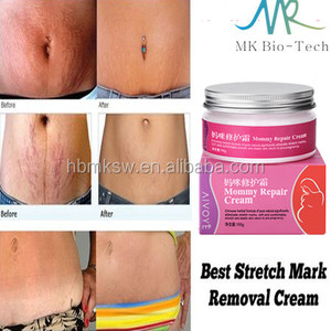 Cream To Remove Stretch Marks Cream To Remove Stretch Marks
