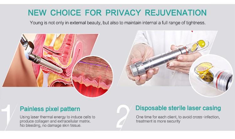 Laser Vaginal Rejuvenation In Adelaide