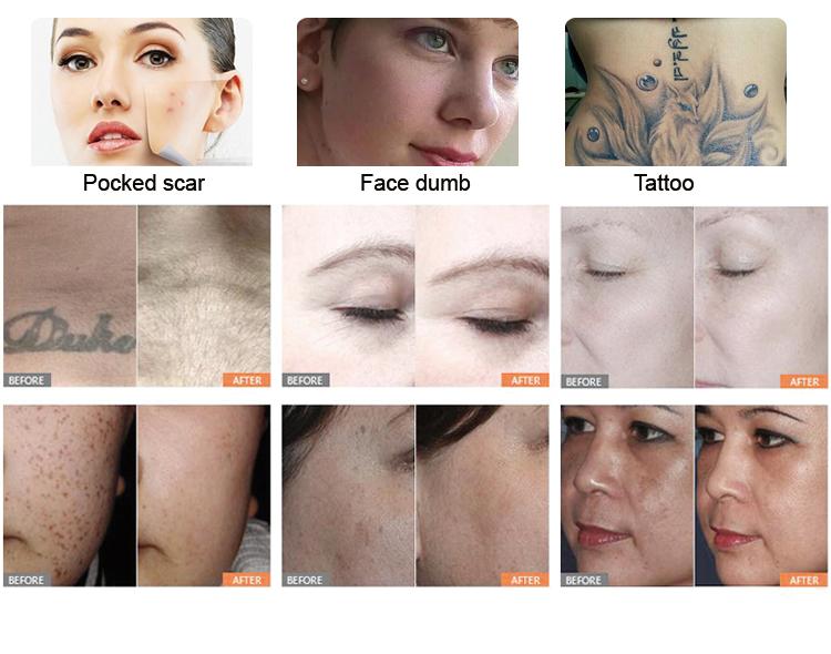 Nano Light Nd Yag Laser Tattoo Removal Machine Price For ...