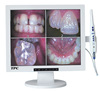 "WIFI dental intraoral camera with 17"" LCD monitor"