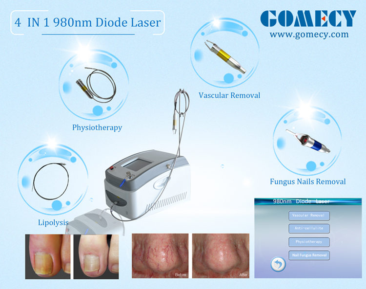 4 functions 9in1 clinic use laser therapy physiotherapy remove spider veins toe nail fungus treatment device 980nm laser.jpg