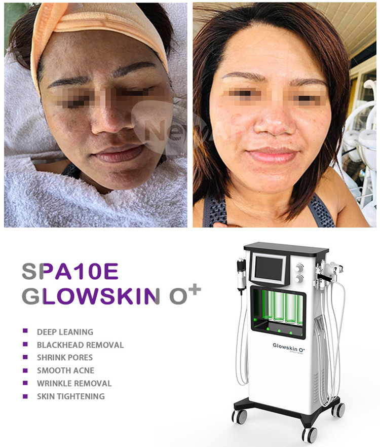 Multifunction hydro facial machine for skin rejuvenation