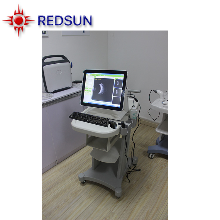 CAS-2000D china best quality ophthalmic ultrasound ab Scan