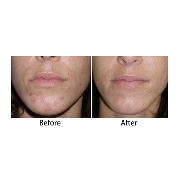Anti Acne Treatment Led Mask Blue Light Facial Mask Buy