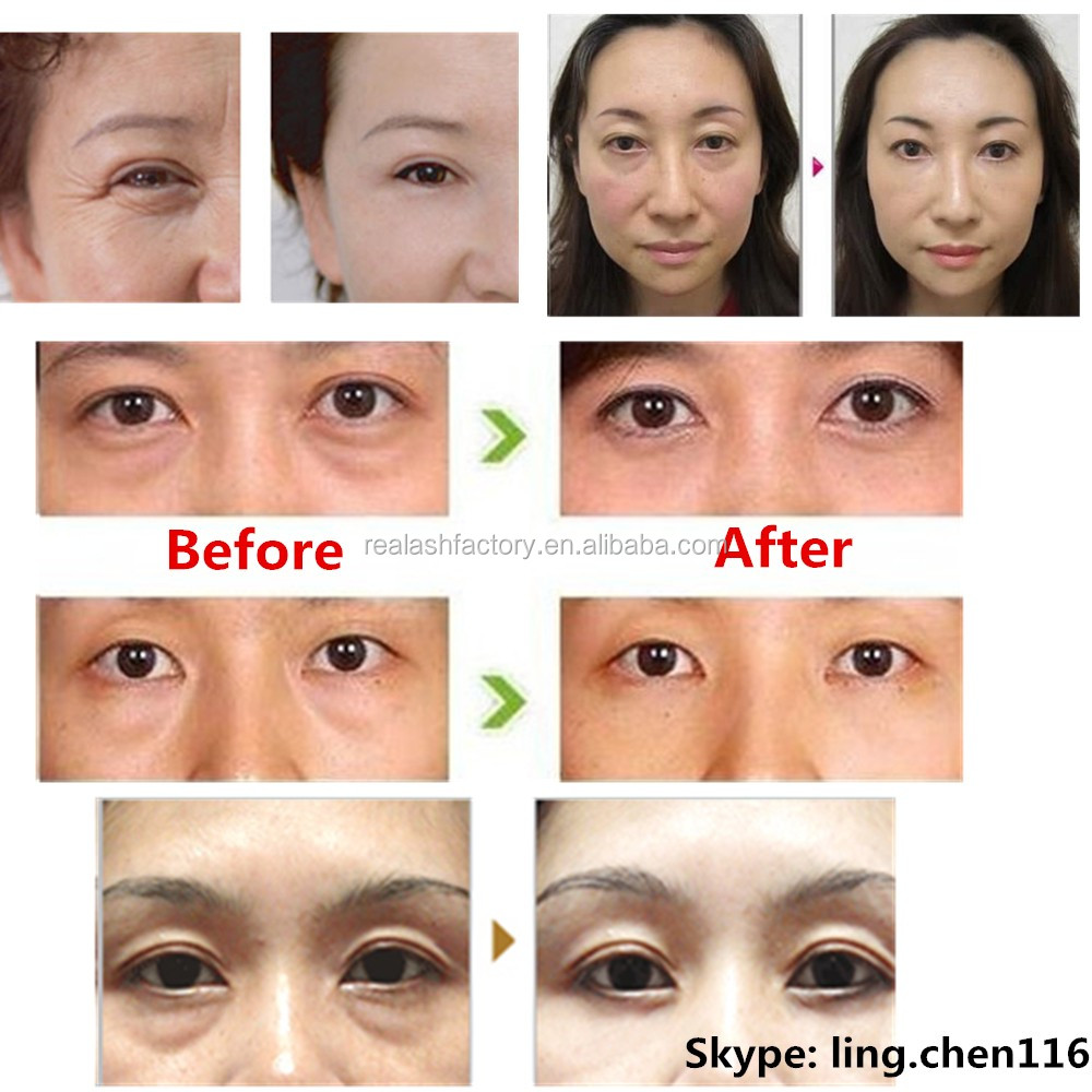 For Men And Women,1 Minute Work Real Plus Eye Bags Cream,Anti ...