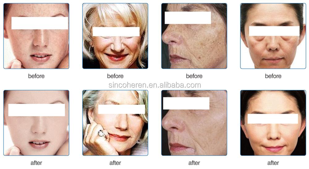 3 Colour Led Omnilux Revive Beauty Machine /acne Treatment For ...
