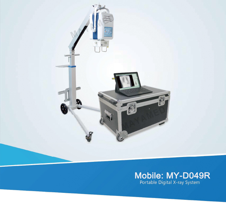 MY-D049R Mobile Digital Radiography X Ray System baggage portable x-ray machine DR equipment price for sale