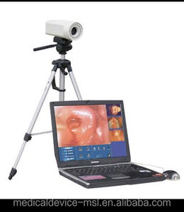 Digital Laptop Colposcope /Colposcopy equipment for sale from colposcope supplier MSLCE01