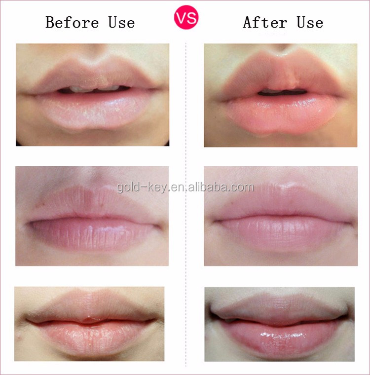 how to get nice lips naturally