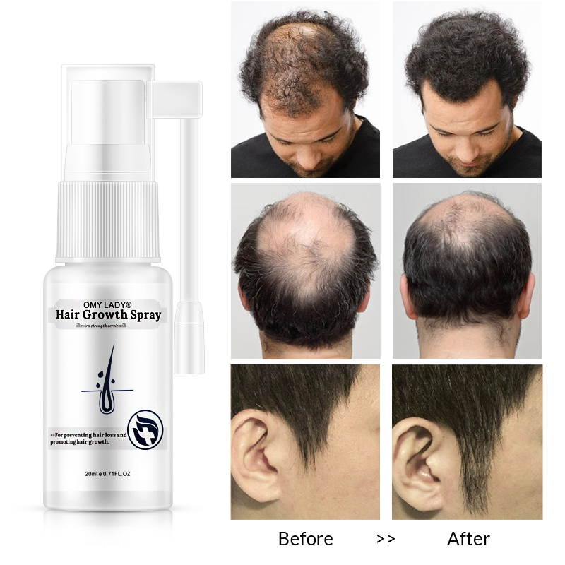 OEM High Demand Products Hair Growth Spray For Anti- hair loss prevention, hair regrowth
