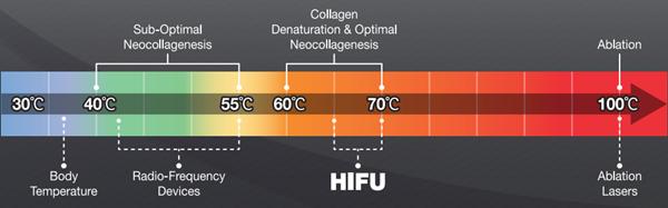 FDA 承認 hifu 超音波エネルギー hifu 超音波ボディ痩身最高締 hifu