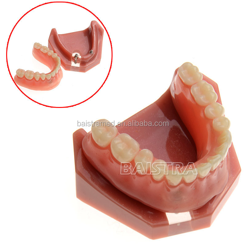 Best Selling Medical College Dental Study / Teaching / Training Tooth Planting restoration model