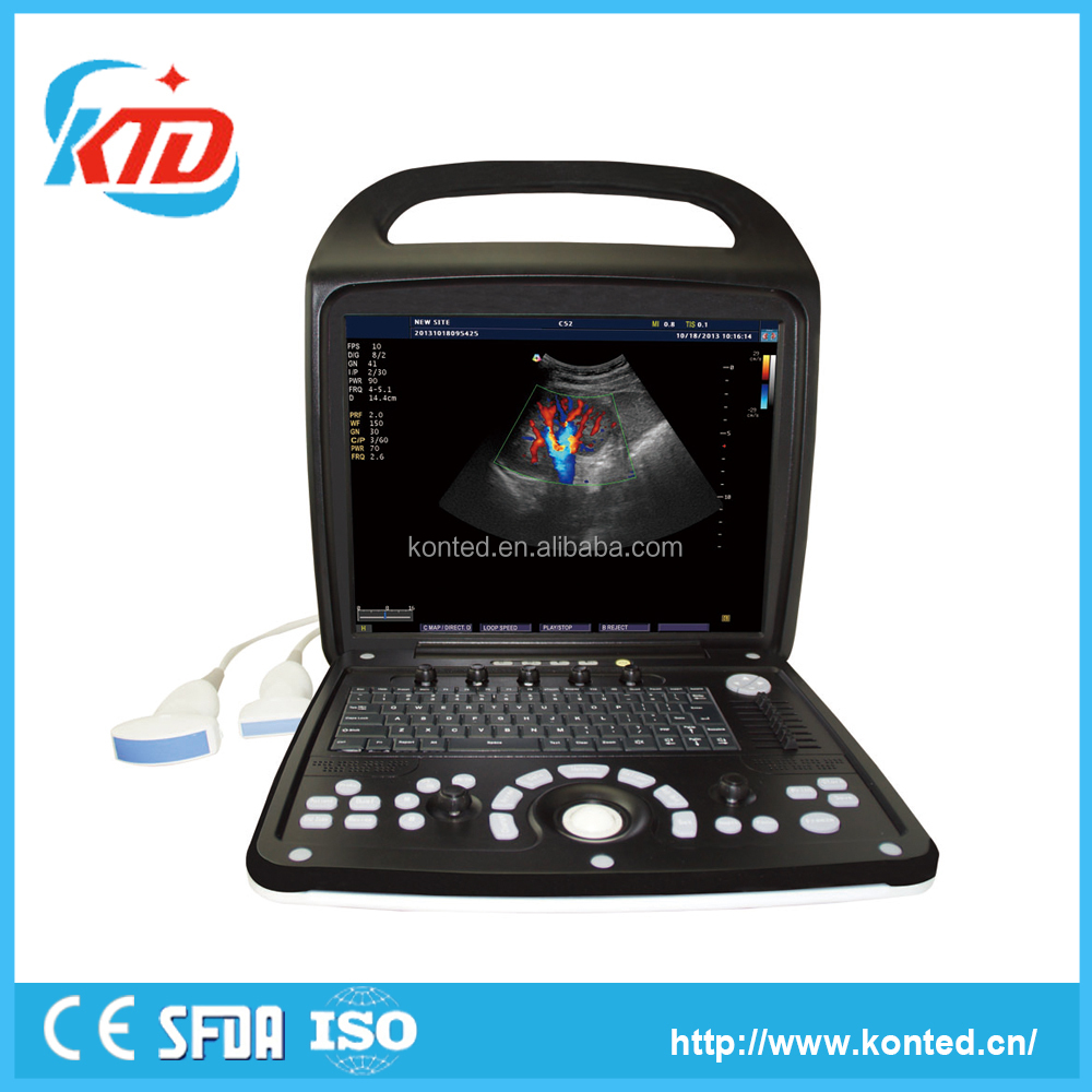 Konted Hospital Equipment Laptop Color Doppler Ultrasound Machine/Equipment C9Plus