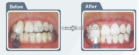Dentes Branqueamento Sistema Dental Gel Kit 44 Peroxido Clareamento