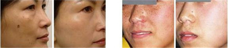 CO2 laser beauty machine for repairing scars and anti-aging dots to eliminate pits after surgery