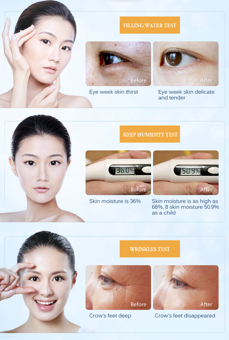 MeiYanQiong Moisturizing Eyes Essence Face Firming Essence Wrinkle Remover Essence For Eye Skin Care Deep Nourishment