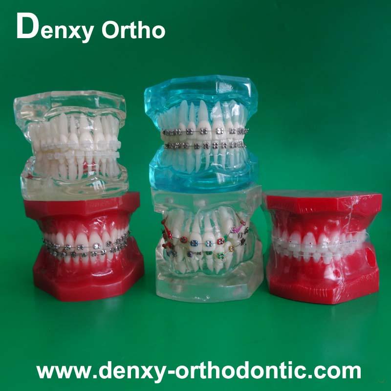 Denxy Ortho Manufacturer Ceramic Braces Models Orthodontic Models ...