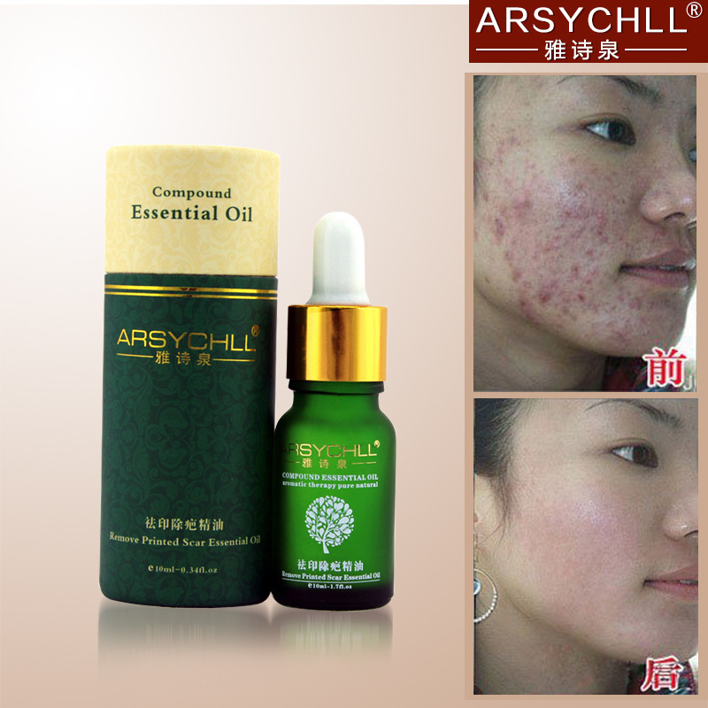 acne scar removal skin face treatment care whitening oil oils cream spots remove marks compound essential moisturizing lavender creams beauty