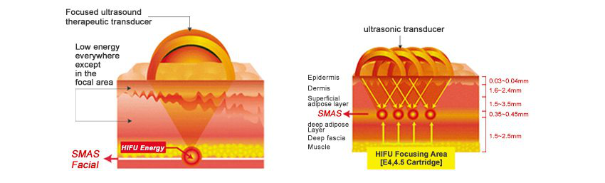 Best hifu face lift beauty equipment high intensity focused