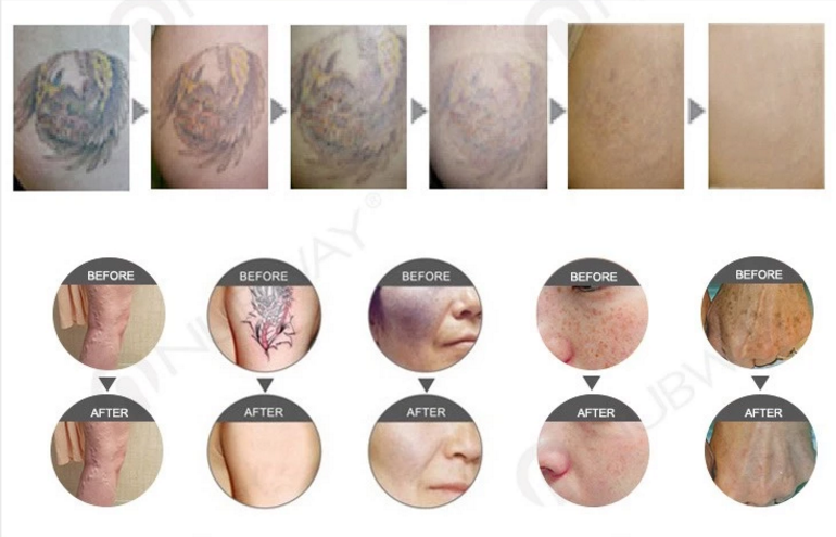 new product ideas 2019 q switch nd yag laser tattoo removal system