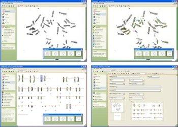 Karyotyping Software - Buy Software Product on Alibaba.com