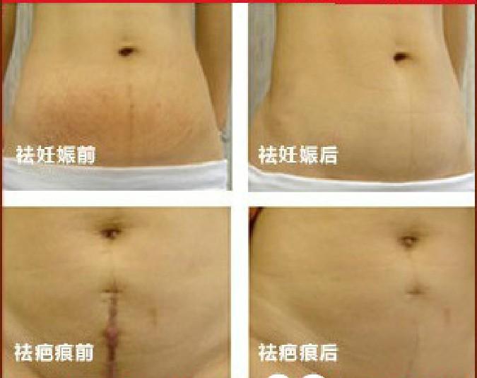 Clear light treatment for acne, acne book, scar treatment oil