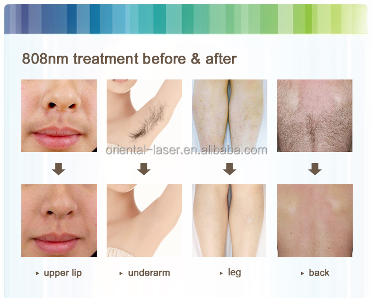 China Tria 4x Laser Brand New Hair Removal For Home Use
