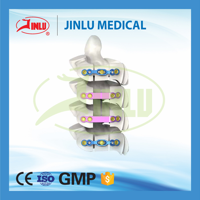 24 hours feedback medical tools hospital consumable titanium cervical plate from implants &amp