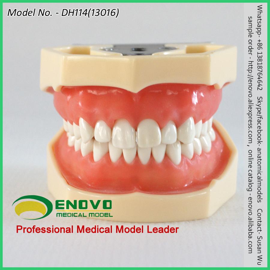 Gum Samples For Dental Professionals