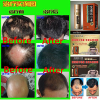 Best Hair Care Products for African American 100% natural extraction organic hair care products