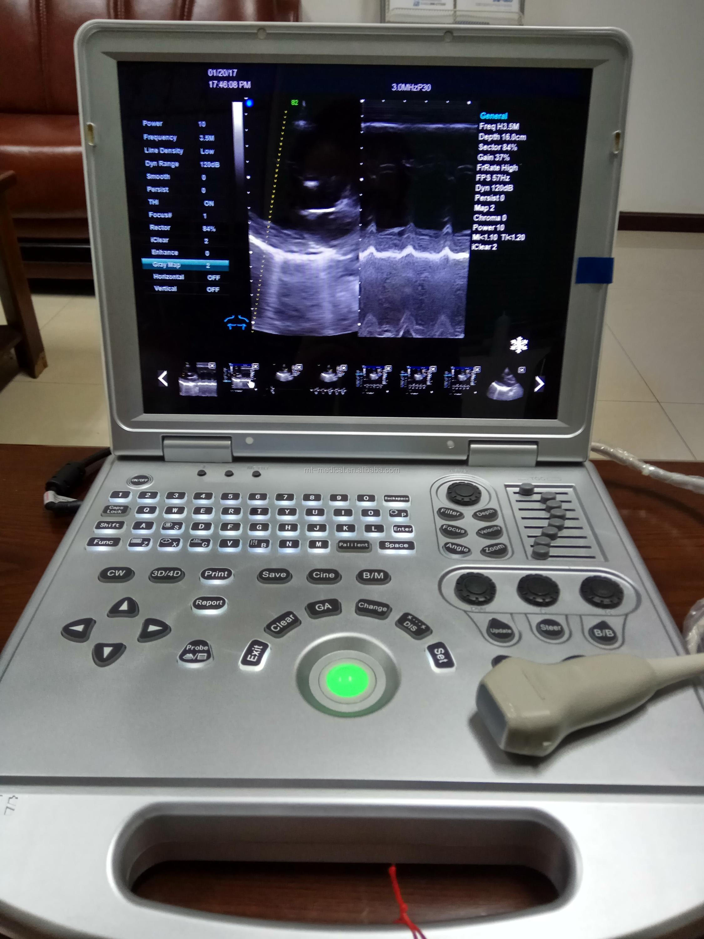High Sensitive Doppler Probe And Low Frequency Cheap Fetal Doppler Portable Ultrasound Machine