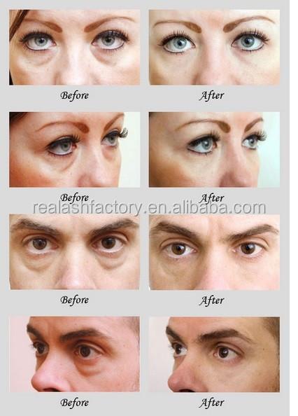 Removal Eye Bag Anti-wrinkle Eye Cream Anti Aging Eye Tight Cream ...