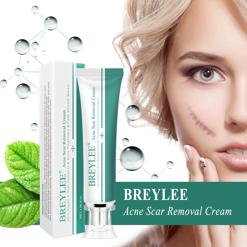 Breylee Acne Scar Removal Cream Can Reduce Stretch Marks Buy