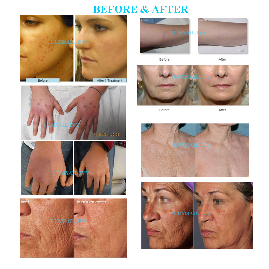 CO2 laser for skin defects spots scars acne scars