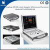 BT-UDC60PLUS 2D/3D Color doppler machine Laptop color doppler portable 3d ultrasound scanner