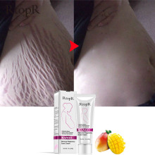 Rtopr Herbal Alami Mangga Anti Scar Cream Anti Kerut Maternity Perbaikan Firming Cepat Efektif Anti Stretch Mark Cream