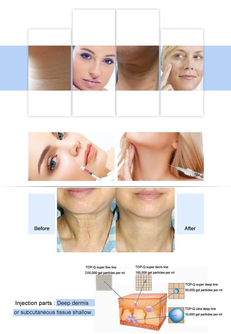 Buy Manufactutrt Top-Q Hyaluronate Acid Dermal Filler Fine Line For Eye Anti-wrinkle Beauty Equipment 1cc