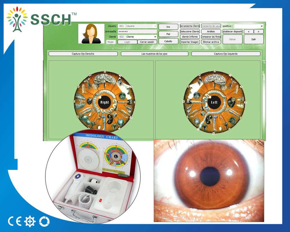 Digital iris analysis system eye iriscope iridology camera iris digital iris analysis system eye iriscope iridology camera iris analyzer geenschuldenfo Gallery