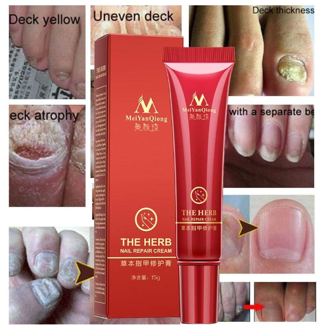 Enjocho Nail Repair Cream,30ml Herbal Fungal Nail Treatment Protector Essence Nail Foot Anti Fungal Feet Care Gel Cream (Red)